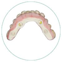 fibra+de+vidrio+dental (1)