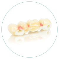 fibra+de+vidrio+dental
